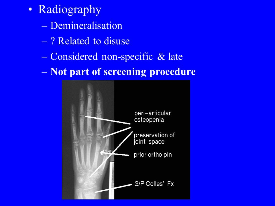 Radiography Demineralisation Related to disuse