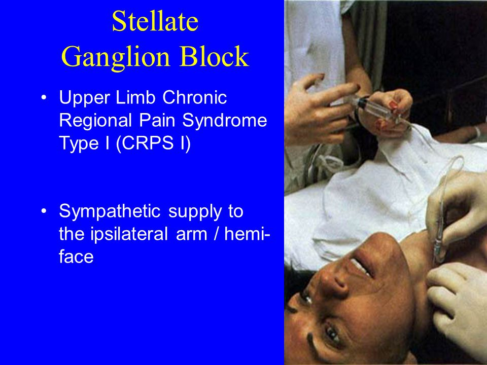Stellate Ganglion Block