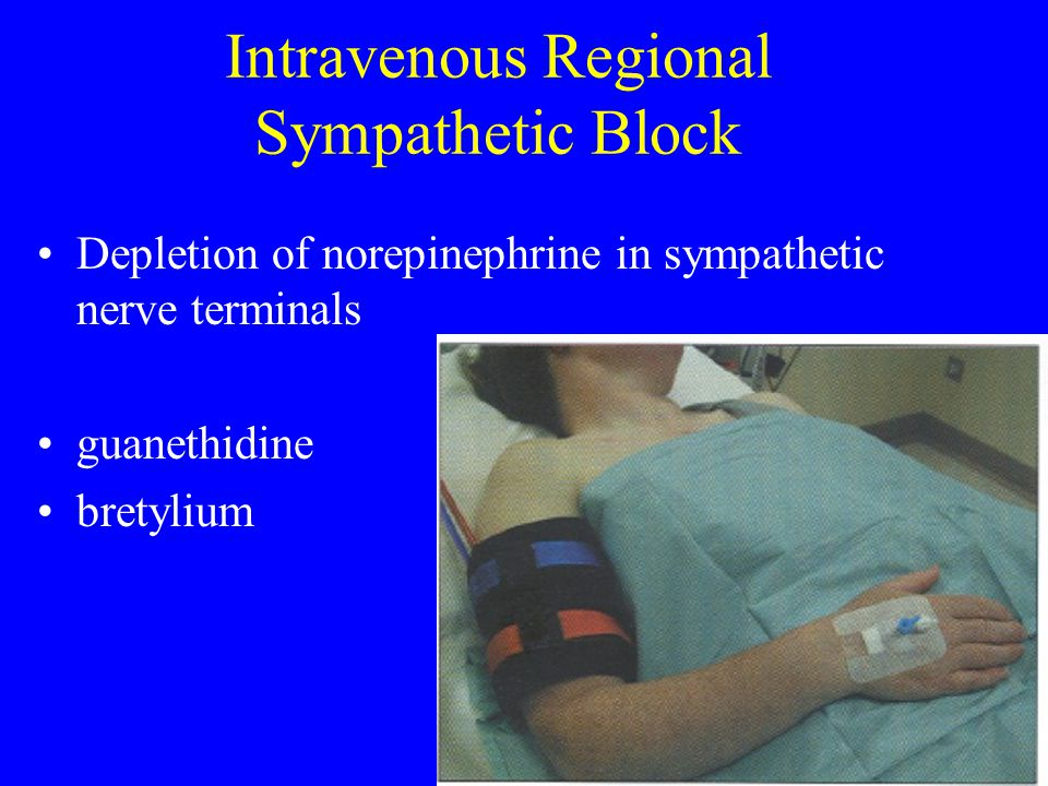 Intravenous Regional Sympathetic Block
