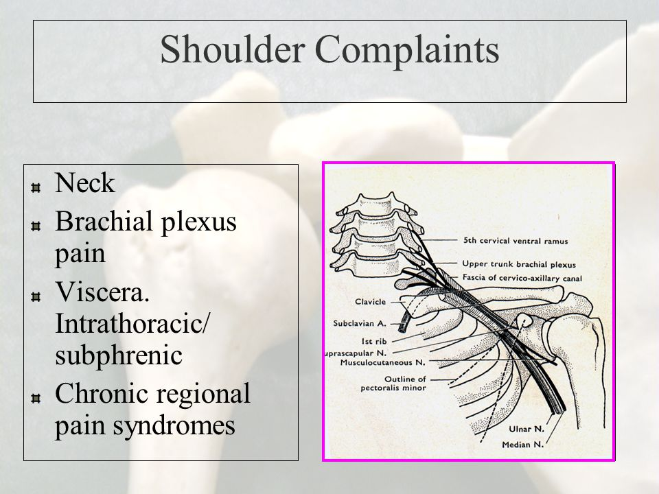 Shoulder Complaints Neck Brachial plexus pain
