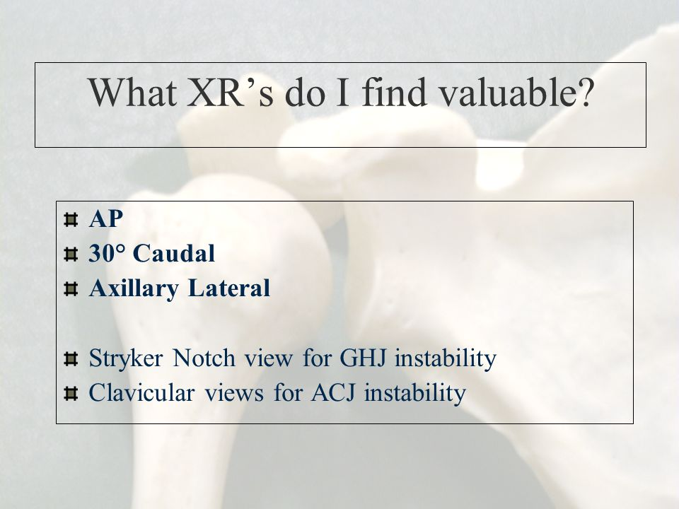 What XR's do I find valuable