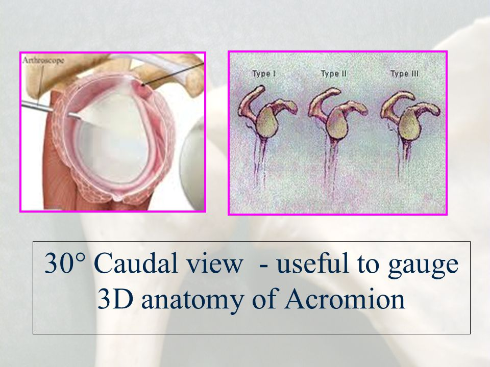 30° Caudal view - useful to gauge 3D anatomy of Acromion