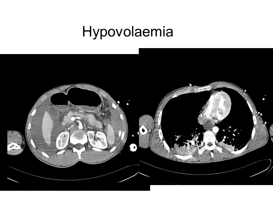 Hypovolaemia Hypovolaemia with collapsed IVC/right heart (despite aggressive resuscitation)