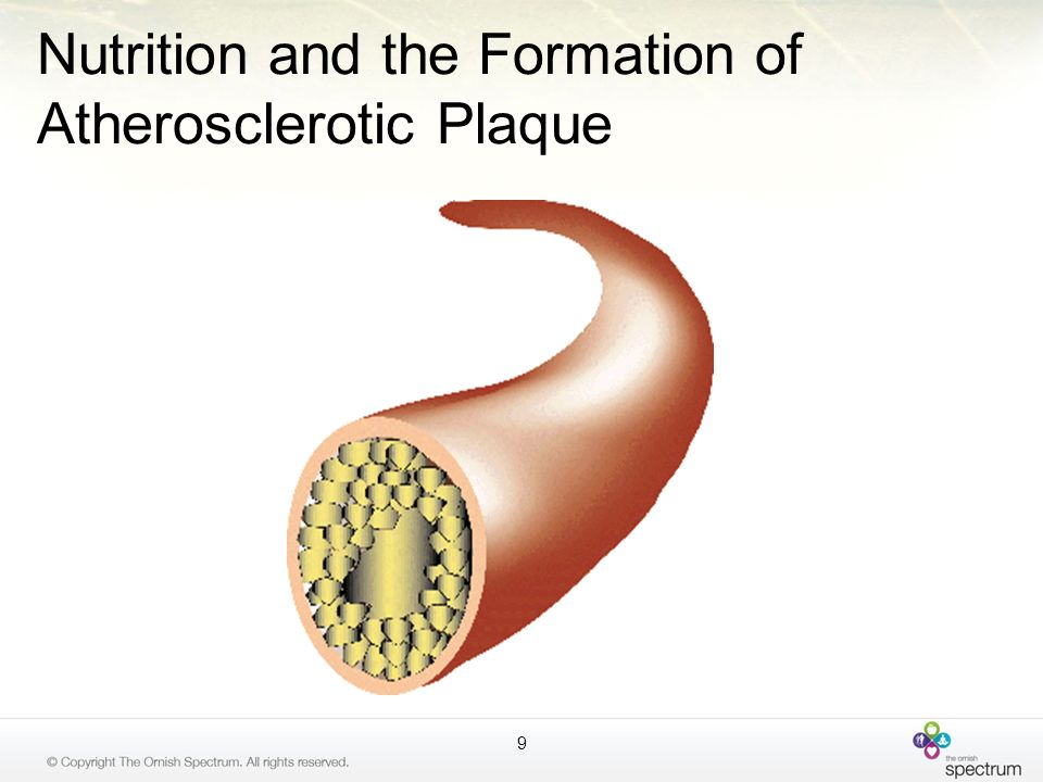 Nutrition and the Formation of Atherosclerotic Plaque