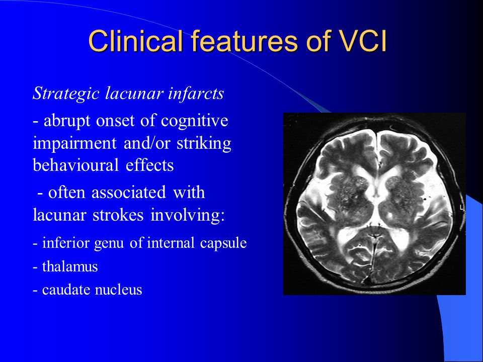 Clinical features of VCI