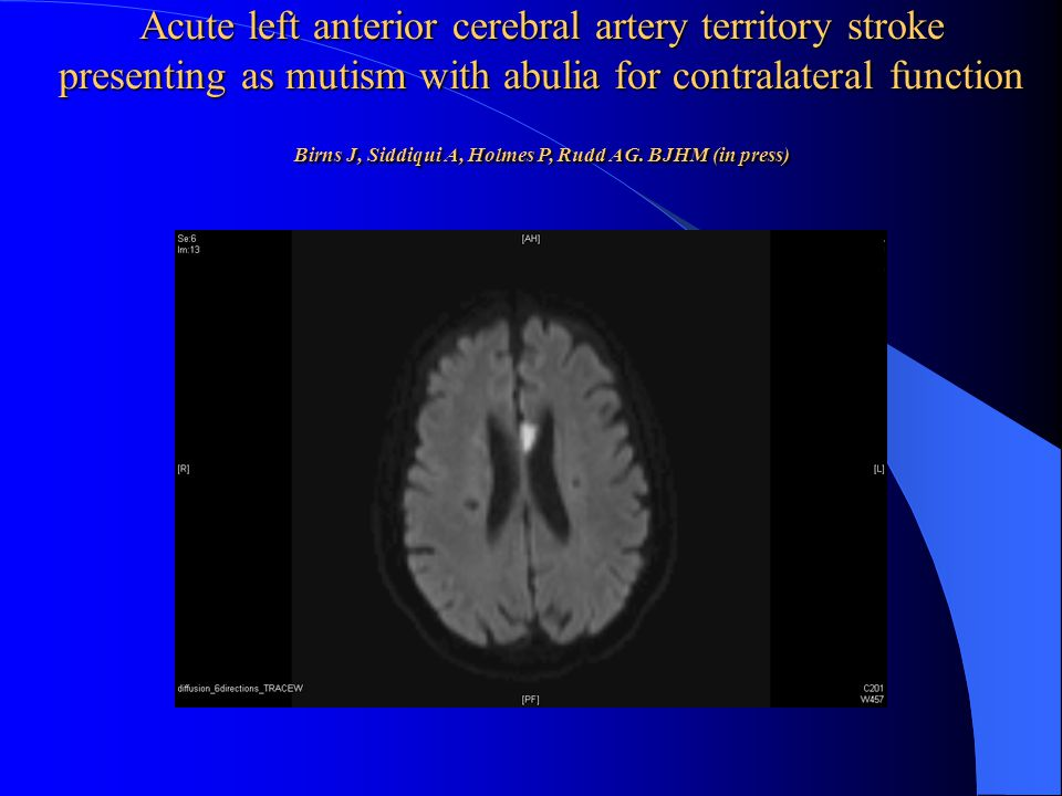 Acute left anterior cerebral artery territory stroke presenting as mutism with abulia for contralateral function Birns J, Siddiqui A, Holmes P, Rudd AG.