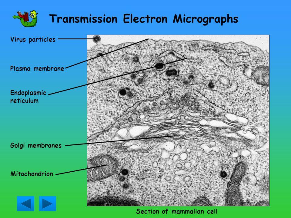 Transmission Electron Micrographs
