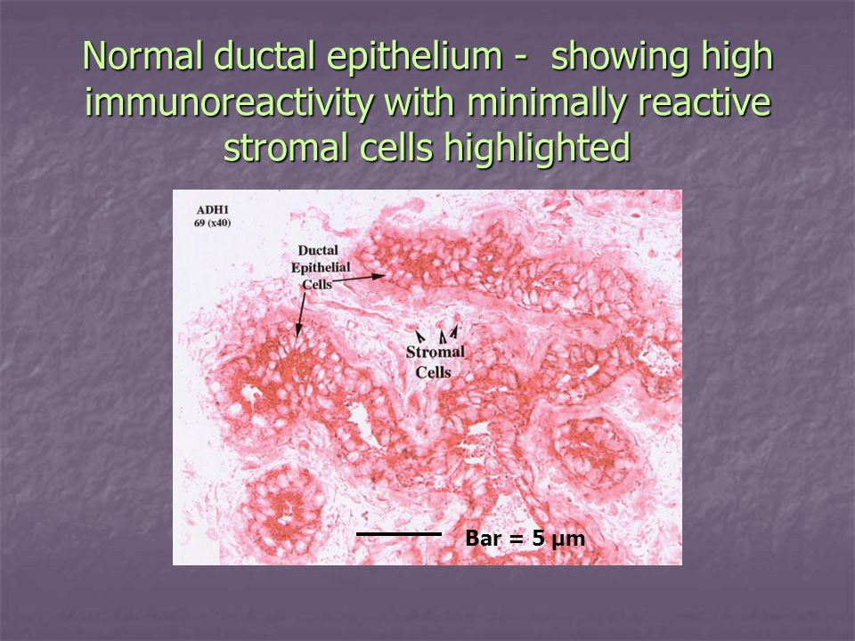 Normal ductal epithelium - showing high immunoreactivity with minimally reactive stromal cells highlighted