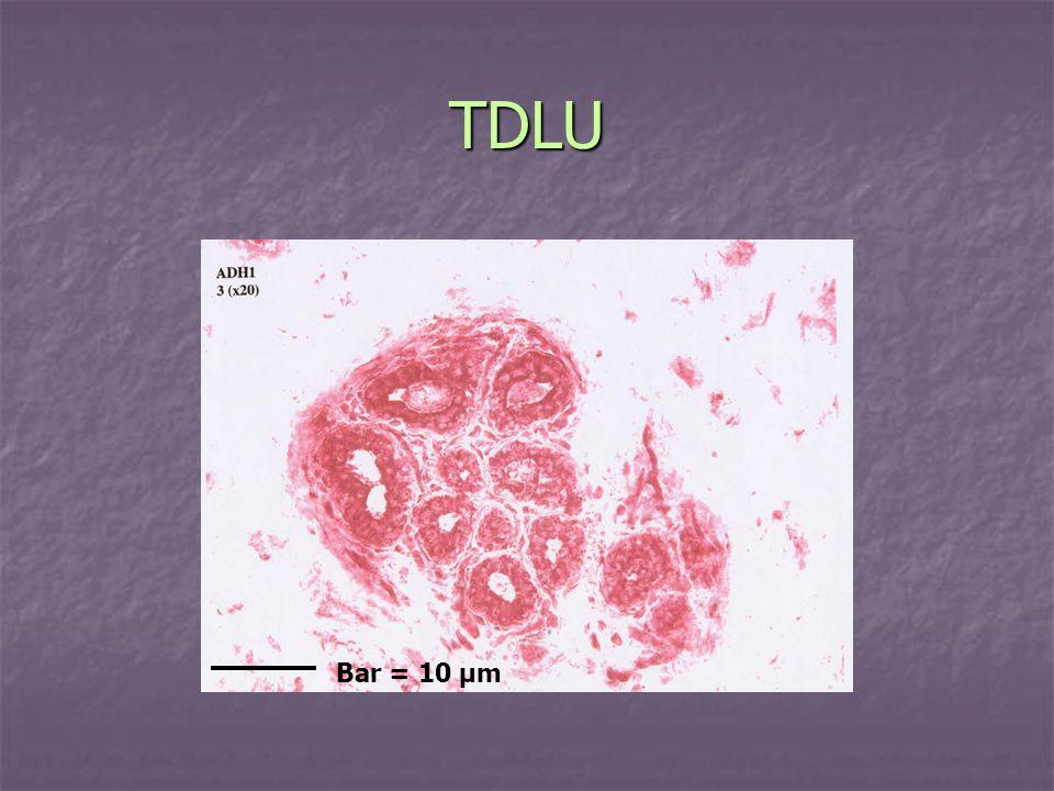 TDLU Bar = 10 µm