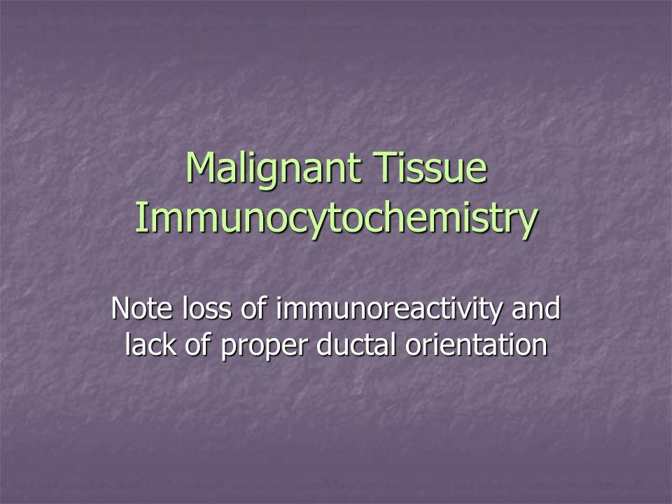 Malignant Tissue Immunocytochemistry