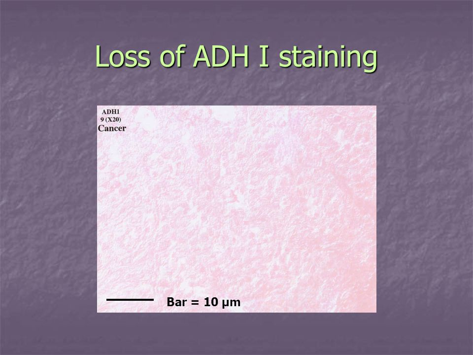 Loss of ADH I staining Bar = 10 µm