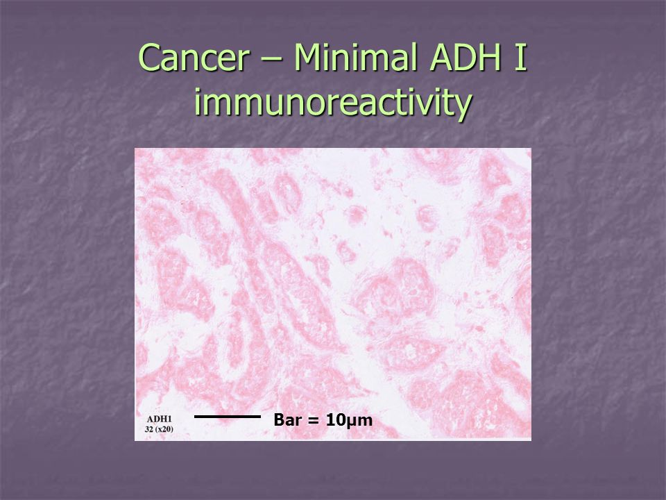 Cancer – Minimal ADH I immunoreactivity