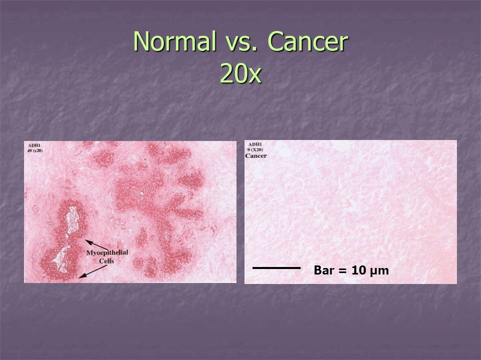 Normal vs. Cancer 20x Bar = 10 µm