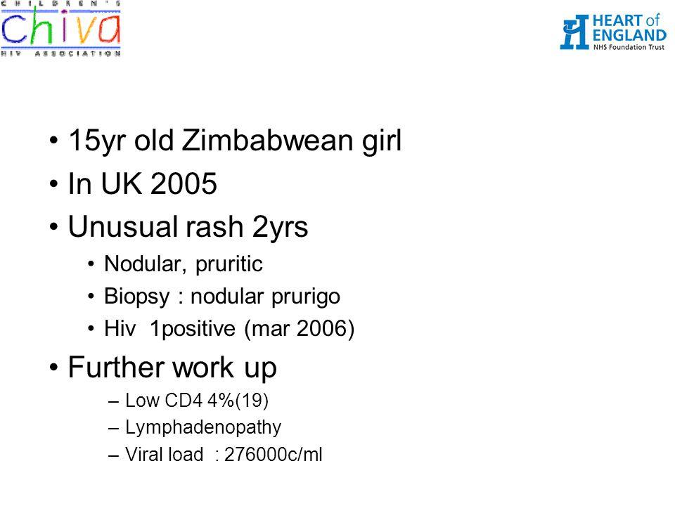 15yr old Zimbabwean girl In UK 2005 Unusual rash 2yrs Further work up