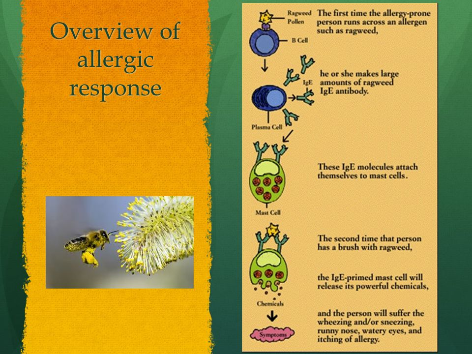 Overview of allergic response