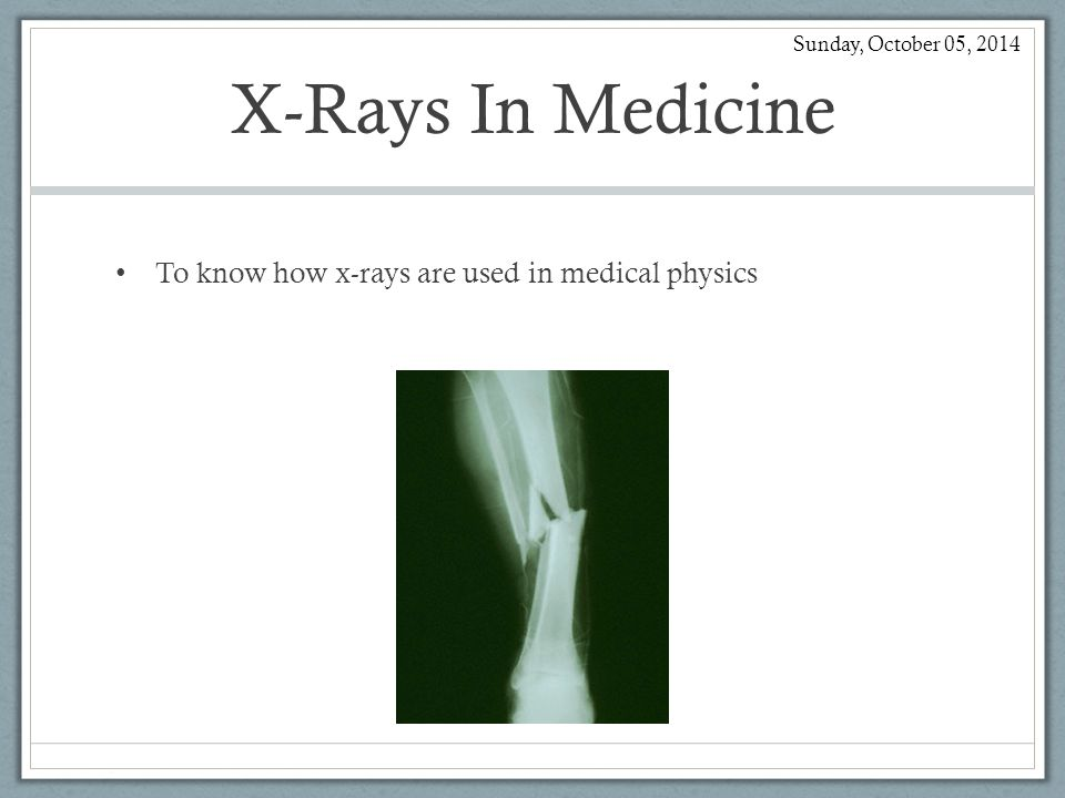 X-Rays In Medicine To know how x-rays are used in medical physics