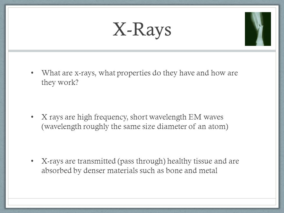 X-Rays What are x-rays, what properties do they have and how are they work