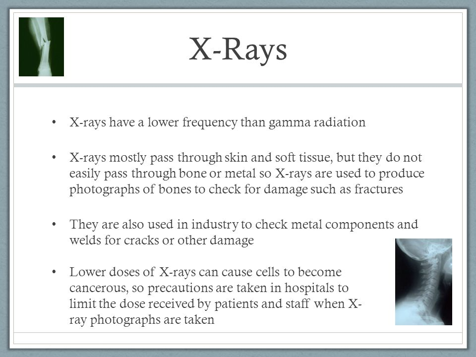 X-Rays X-rays have a lower frequency than gamma radiation