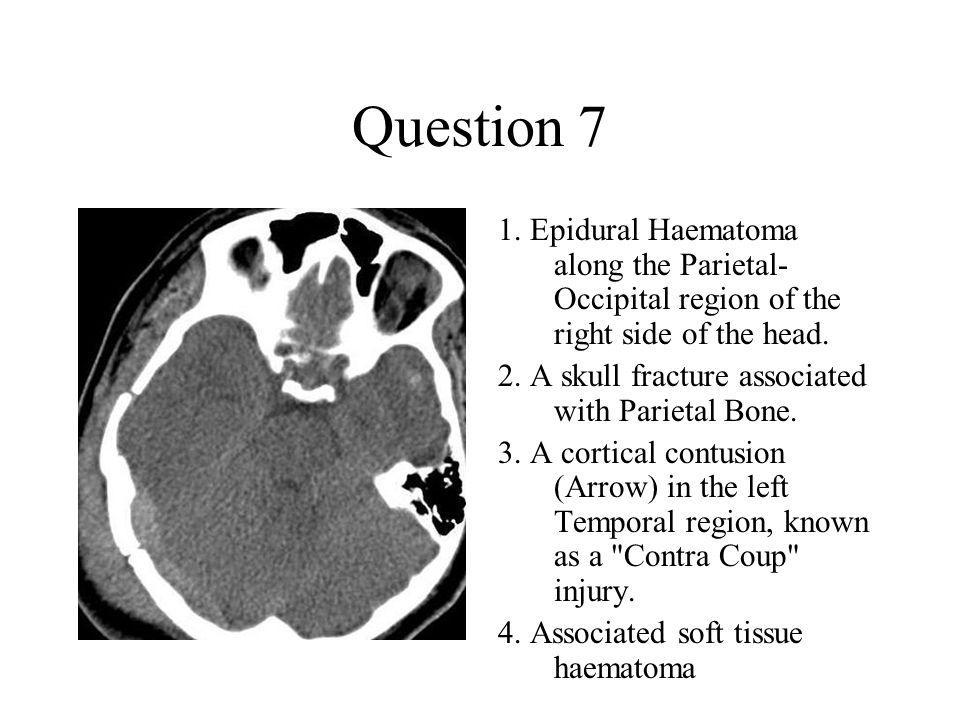 Question 7 1. Epidural Haematoma along the Parietal-Occipital region of the right side of the head.