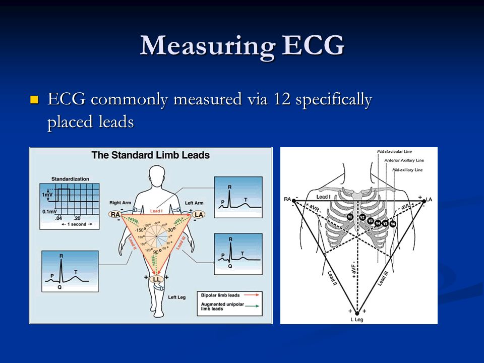 Measuring ECG ECG commonly measured via 12 specifically placed leads