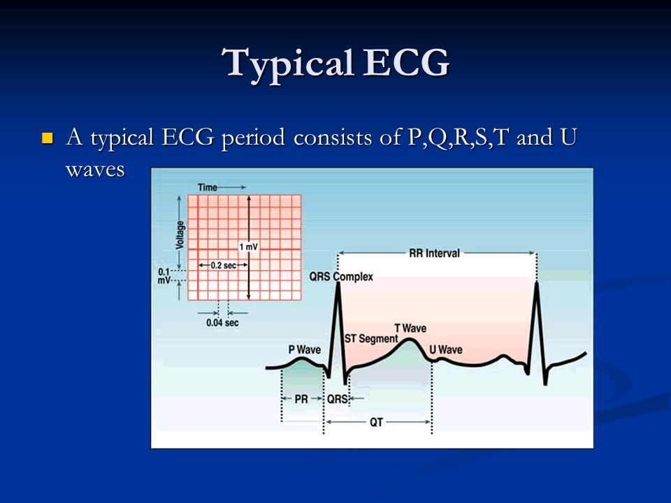 Typical ECG A typical ECG period consists of P,Q,R,S,T and U waves
