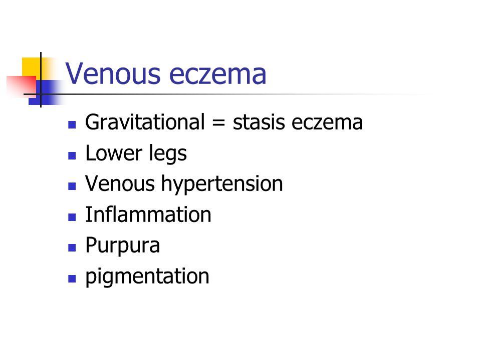 Venous eczema Gravitational = stasis eczema Lower legs