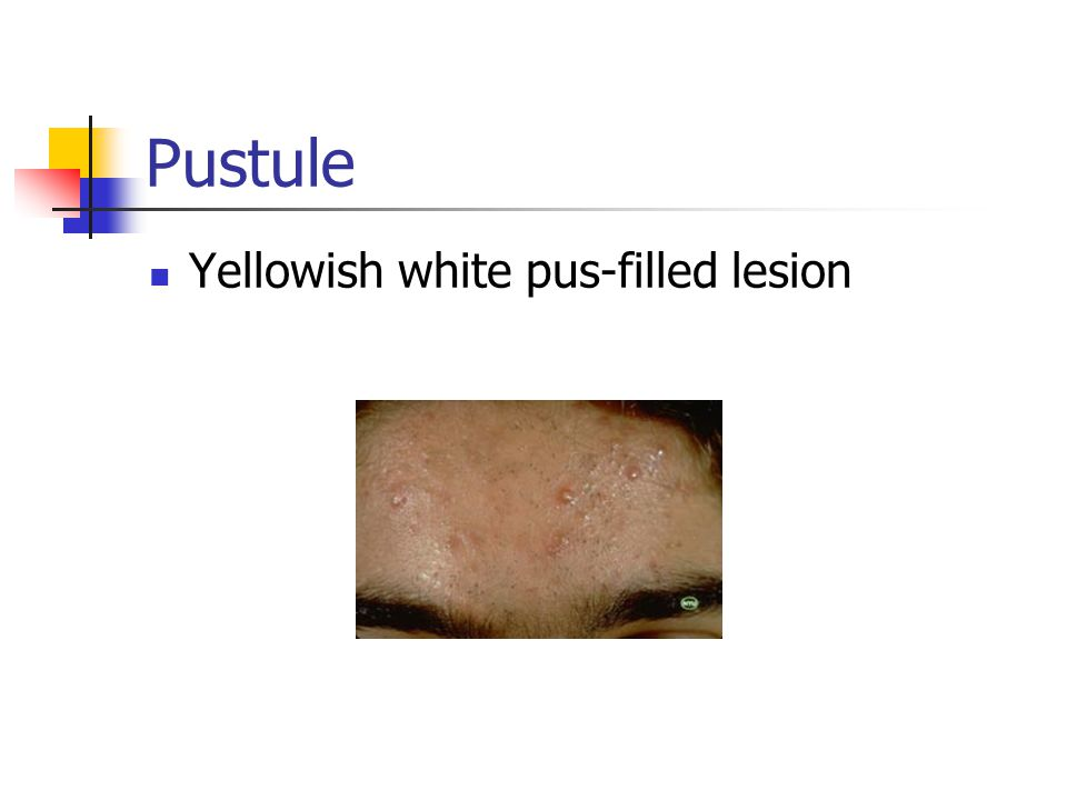 Pustule Yellowish white pus-filled lesion