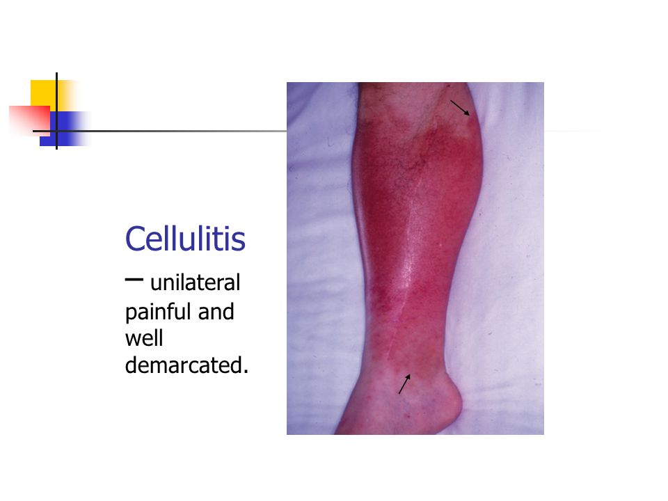 Cellulitis – unilateral painful and well demarcated.