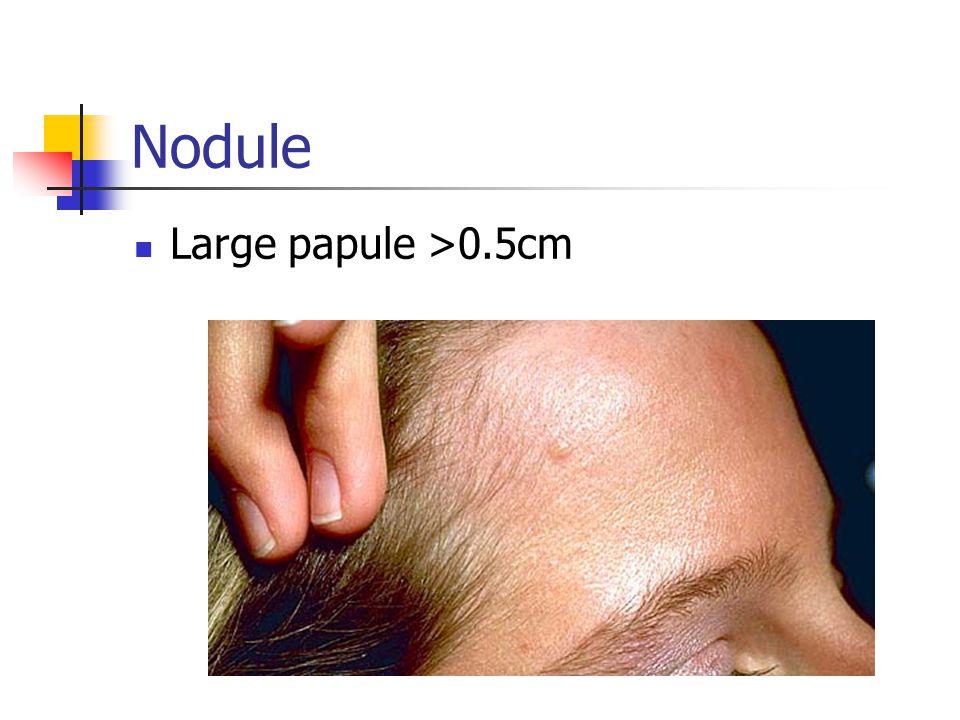 Nodule Large papule >0.5cm