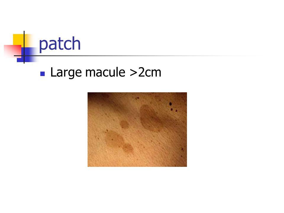 patch Large macule >2cm