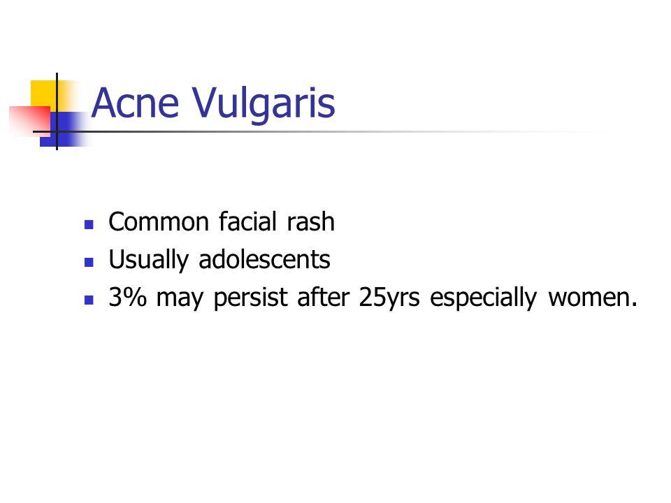 Acne Vulgaris Common facial rash Usually adolescents
