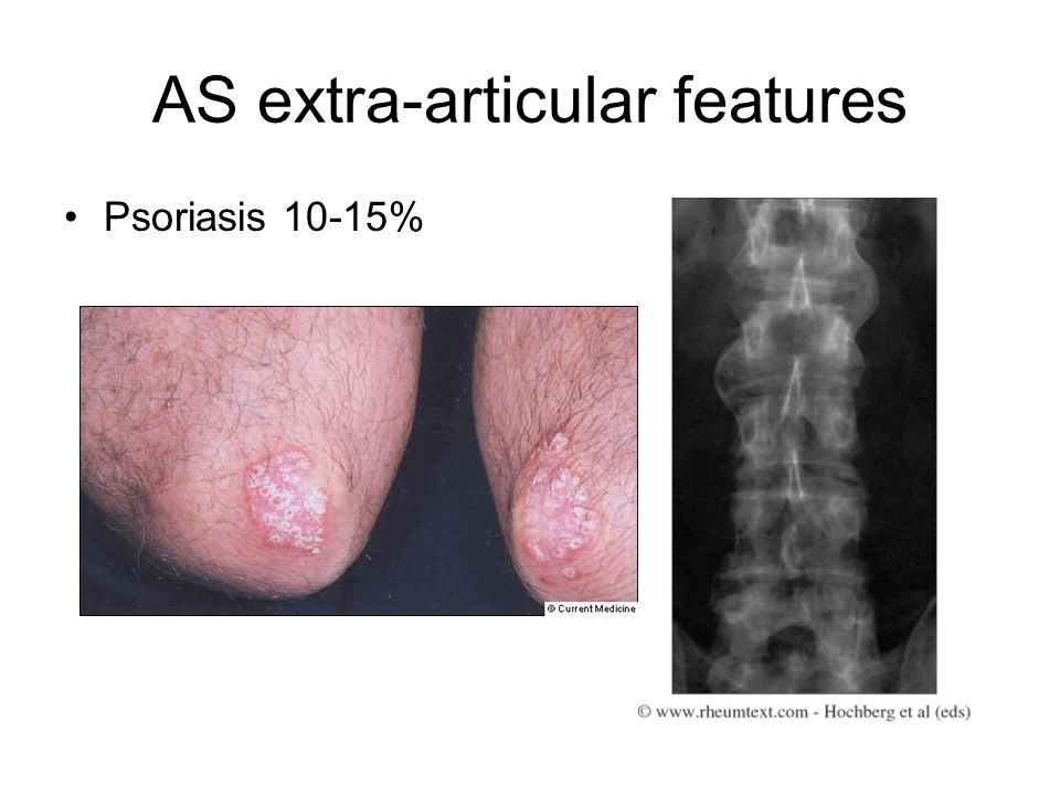 AS extra-articular features