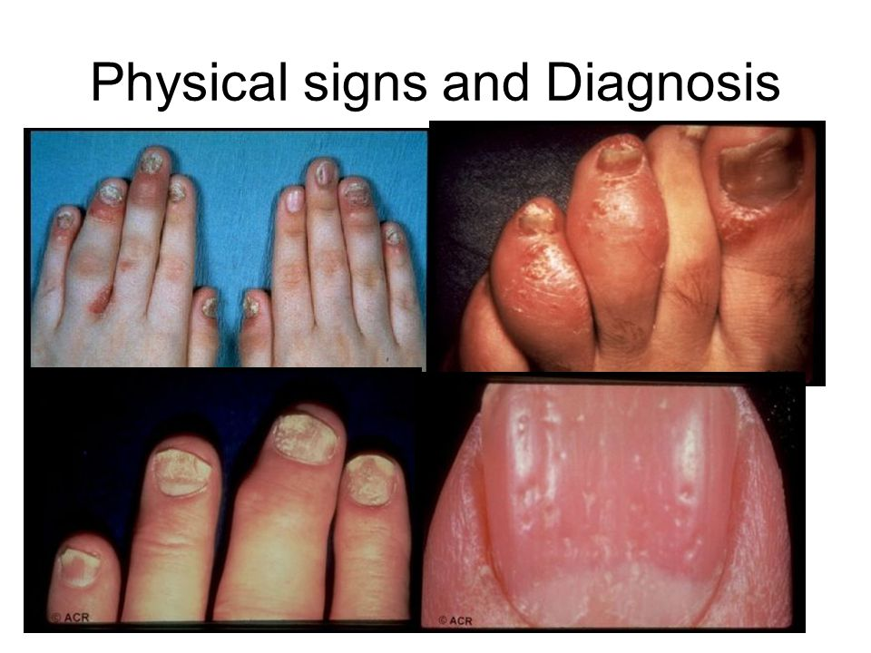 Physical signs and Diagnosis