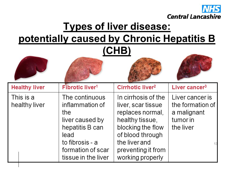 Types of liver disease: potentially caused by Chronic Hepatitis B (CHB)