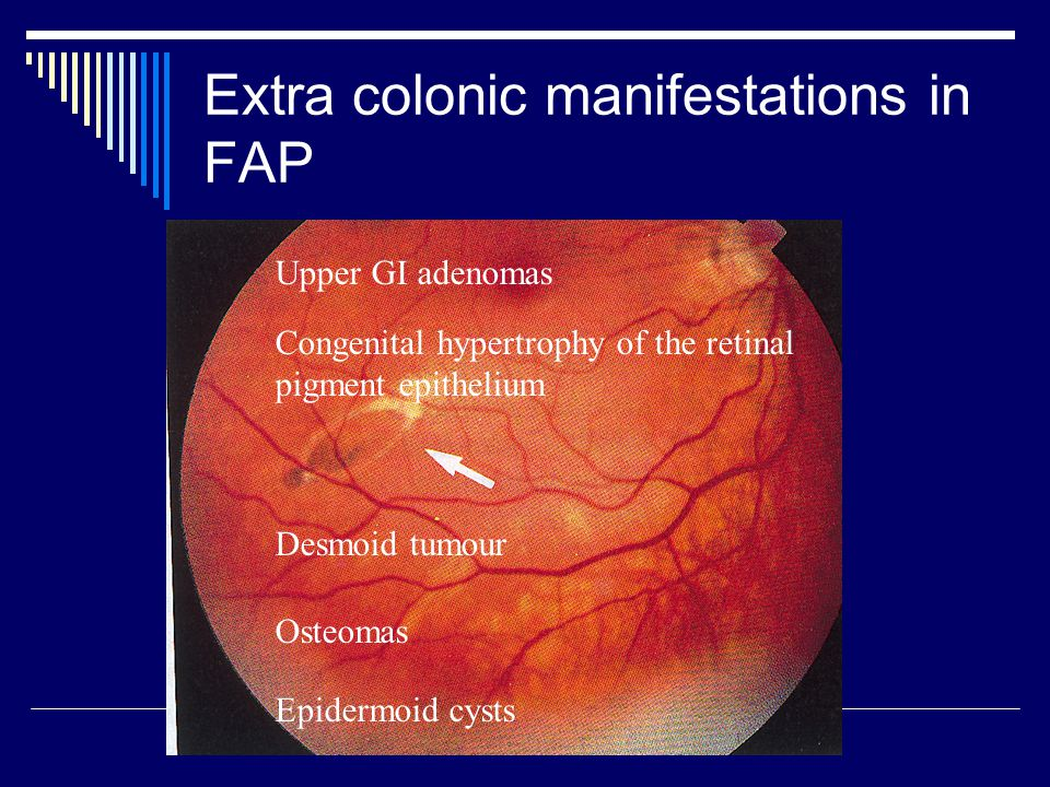 Extra colonic manifestations in FAP