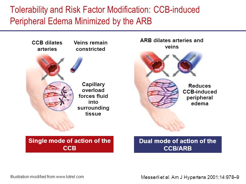 Tolerability and Risk Factor Modification: CCB-induced Peripheral Edema Minimized by the ARB