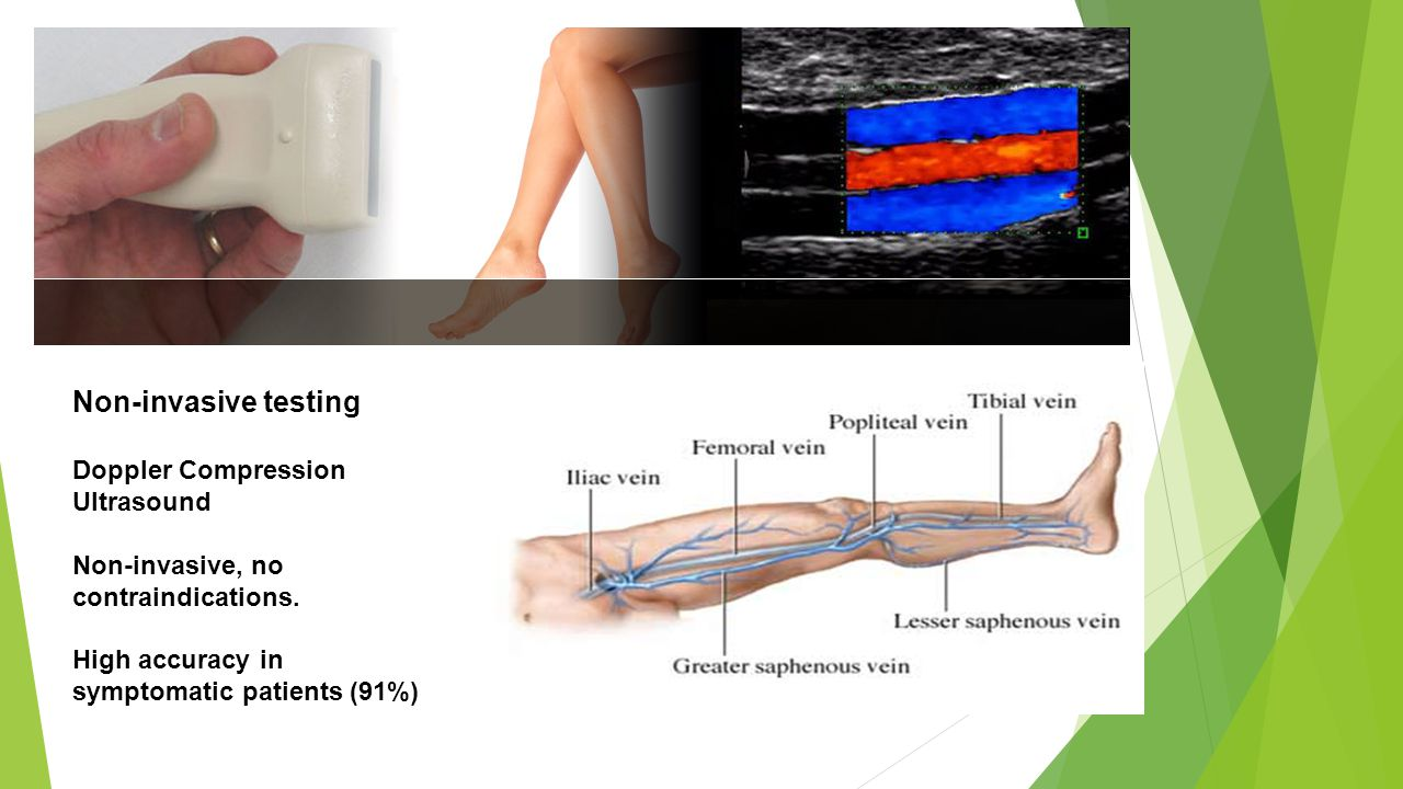 Non-invasive testing Doppler Compression Ultrasound