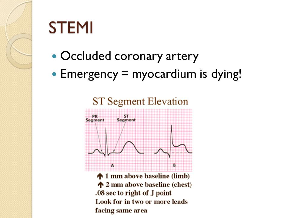 STEMI Occluded coronary artery Emergency = myocardium is dying!