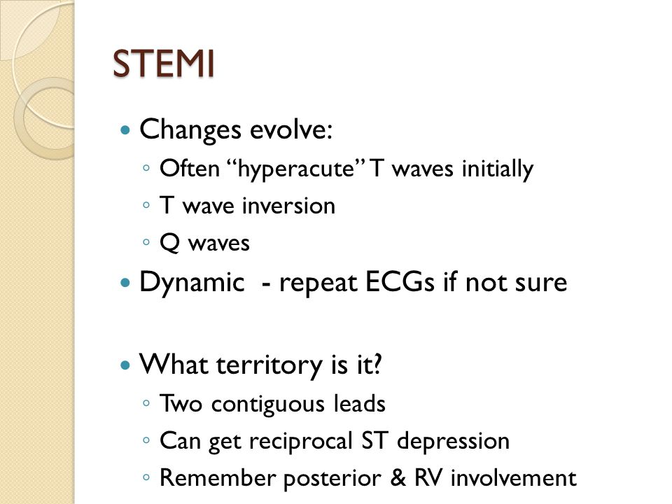 STEMI Changes evolve: Dynamic - repeat ECGs if not sure