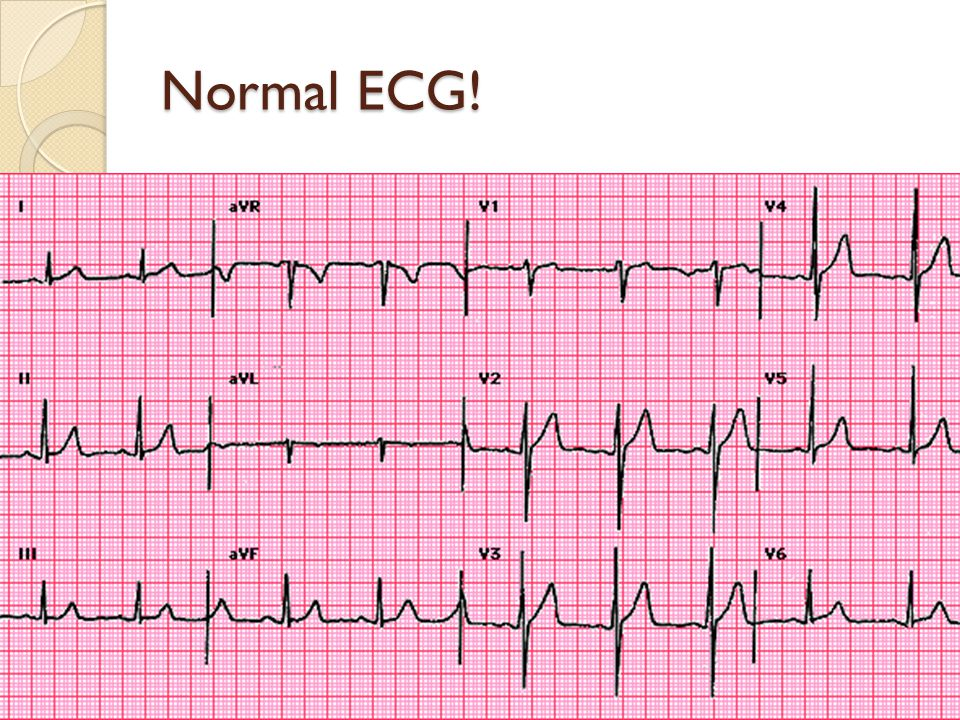Normal ECG!