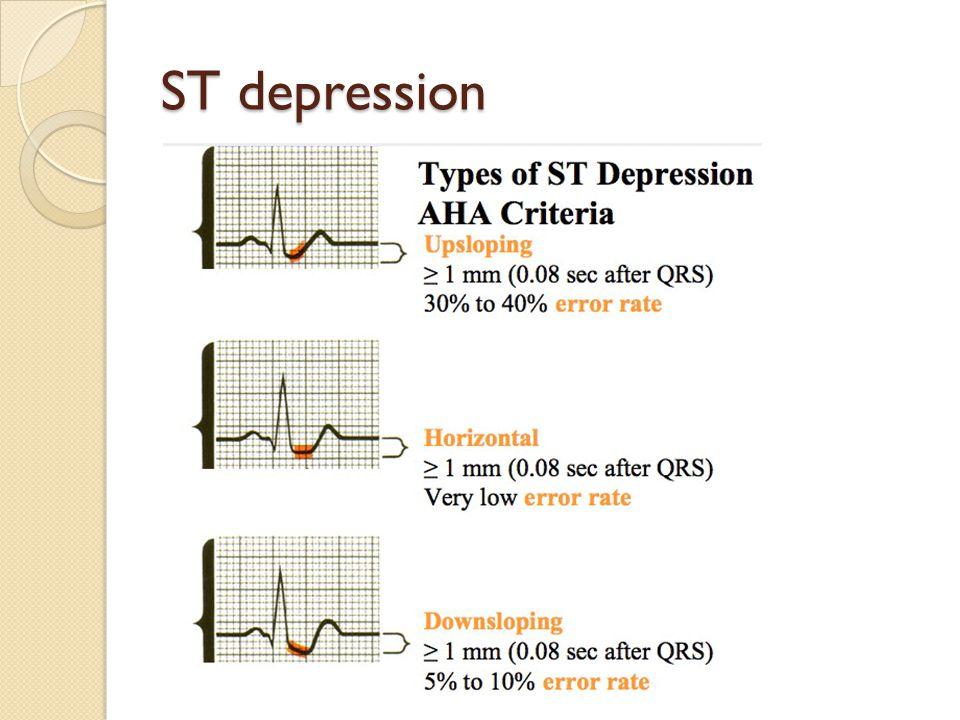 ST depression