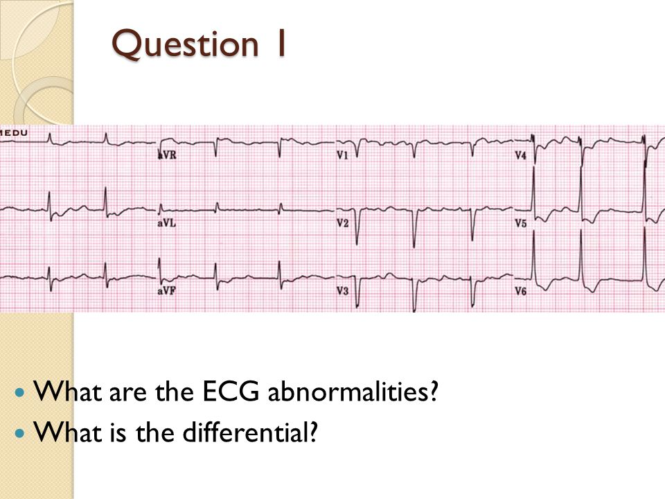 Question 1 What are the ECG abnormalities What is the differential