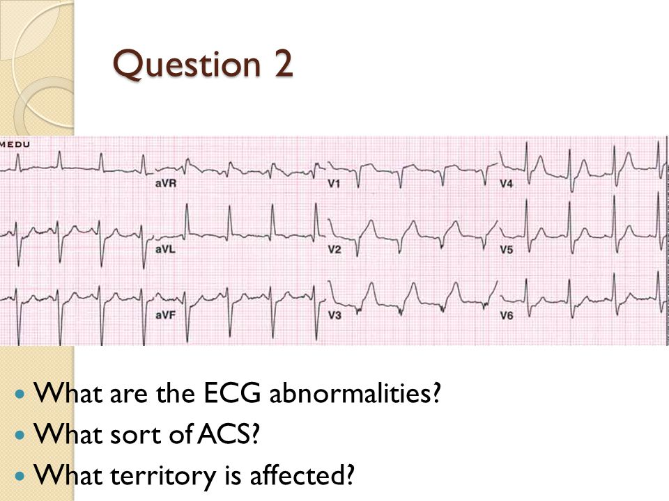 Question 2 What are the ECG abnormalities What sort of ACS