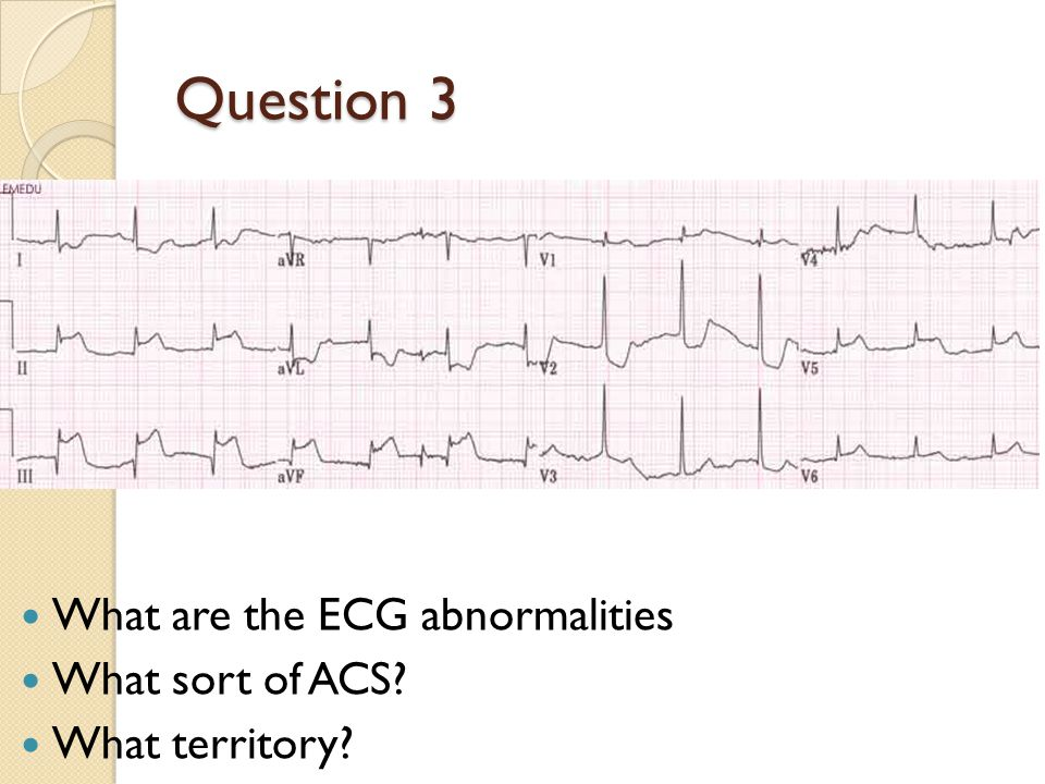 Question 3 What are the ECG abnormalities What sort of ACS