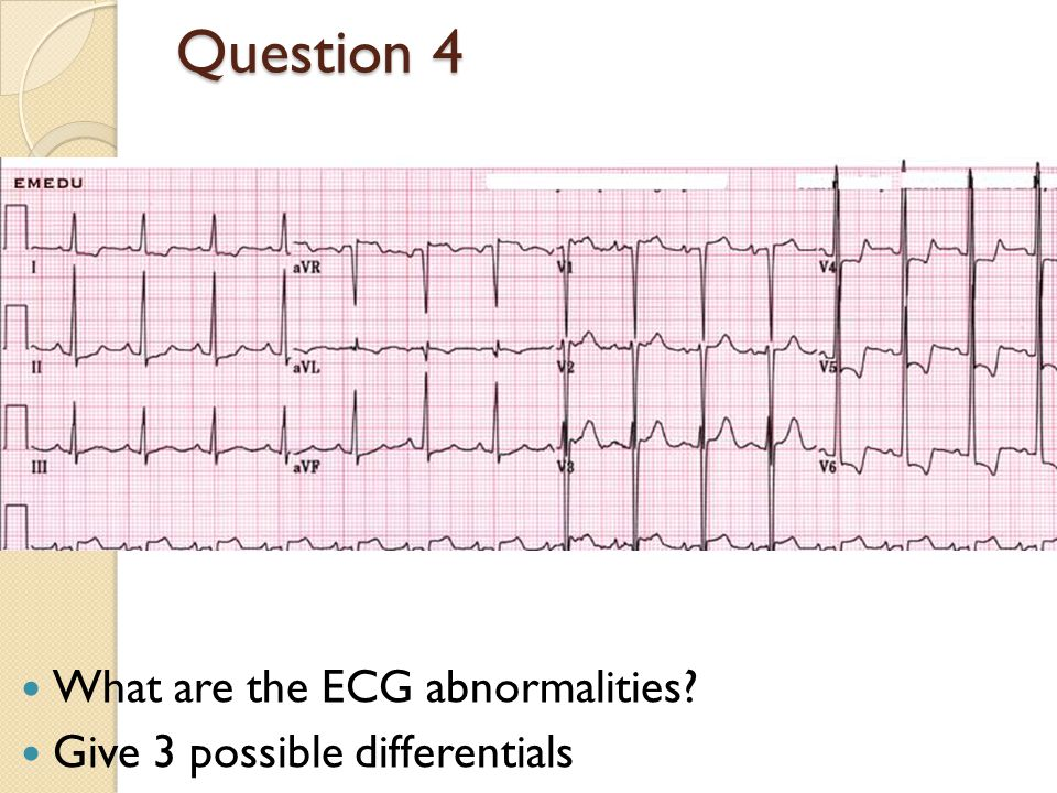 Question 4 What are the ECG abnormalities