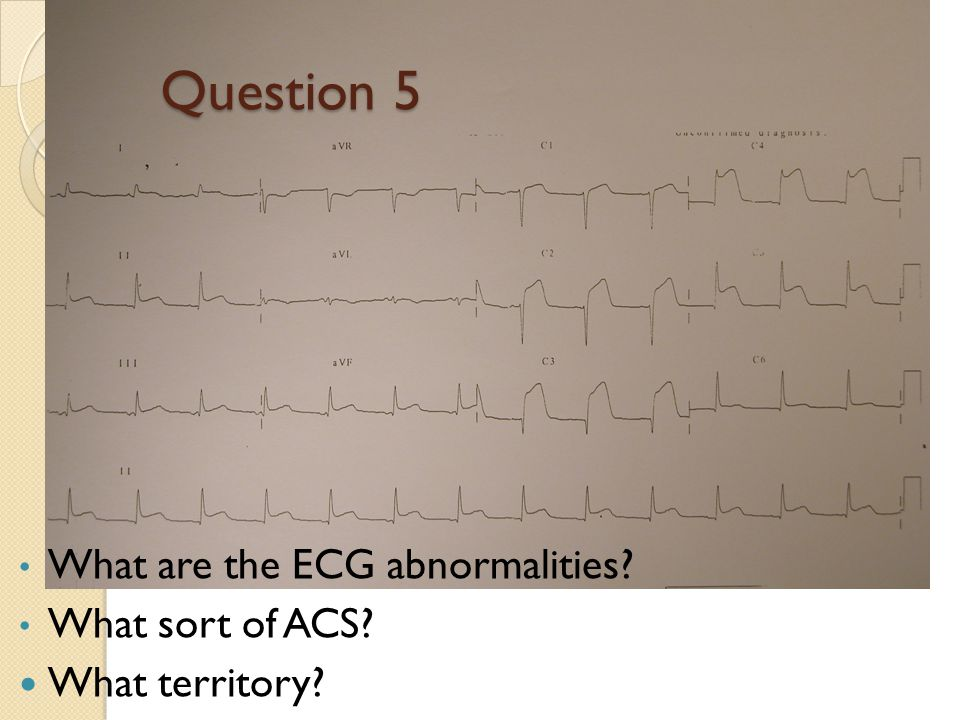 Question 5 What are the ECG abnormalities What sort of ACS
