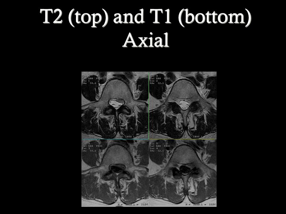T2 (top) and T1 (bottom) Axial