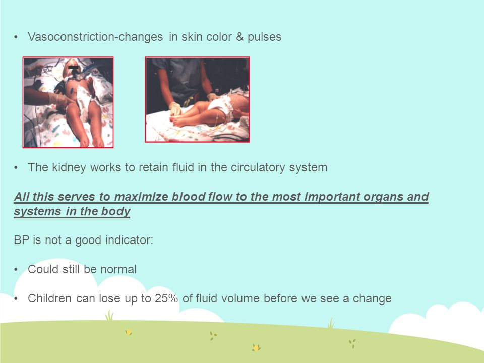 Vasoconstriction-changes in skin color & pulses