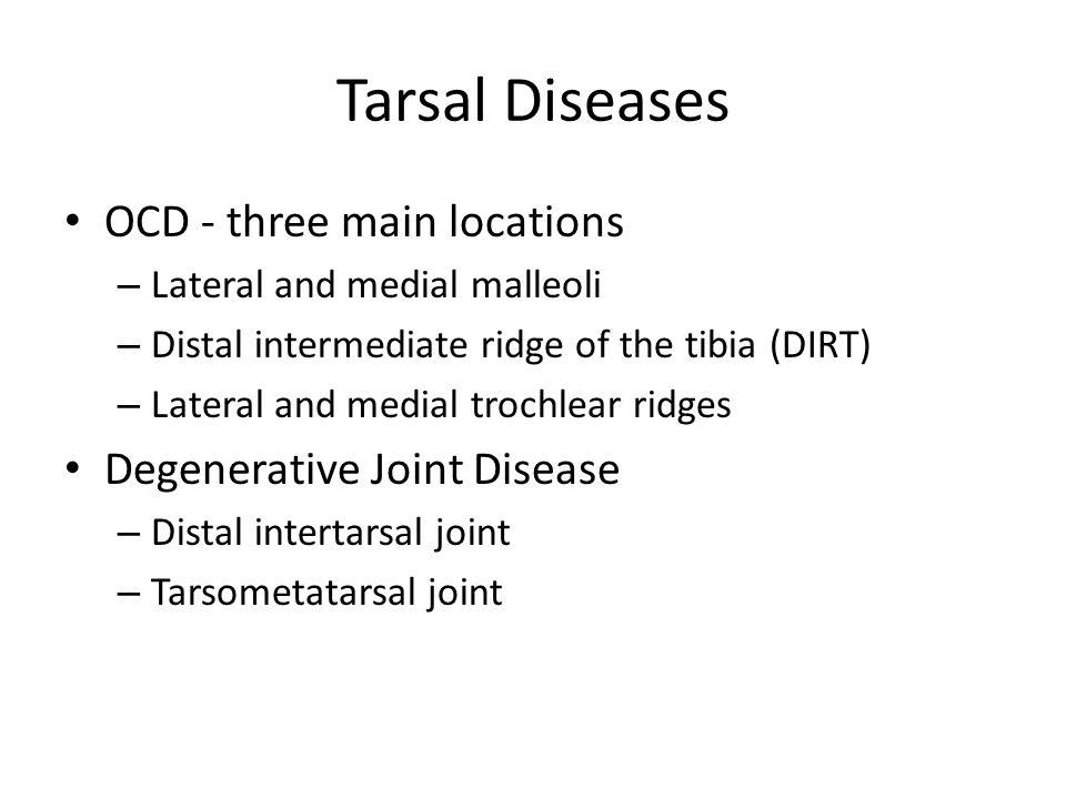 Tarsal Diseases OCD - three main locations Degenerative Joint Disease
