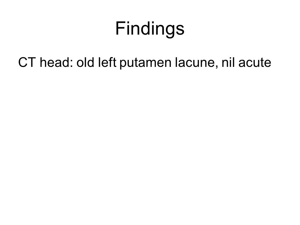 Findings CT head: old left putamen lacune, nil acute